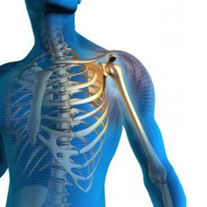 Chirurgie d'orthopédie